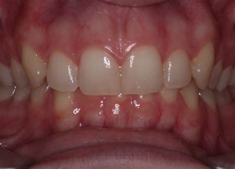 Common problems that need attention - Braces4U - Mackay