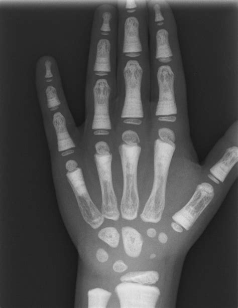 """Radiological """"bone within a bone"""" appearance with"""