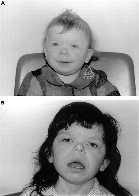 A case of Williams syndrome with a large, visible
